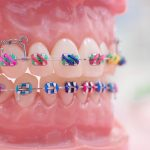 Aparat dentar fix metalic