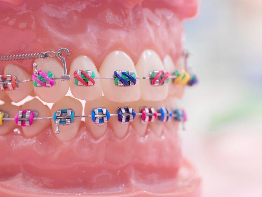 Aparat dentar fix metalic
