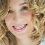 Ortodonție [Ghid rapid]